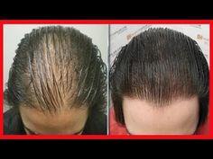 Baking Soda Shampoo, Hair Loss Shampoo, Short Hair Cuts, New Hair, Body Care, Health And Beauty, Health Tips, Natural Hair Styles, Hair Beauty