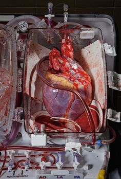 A human heart destined for transplant