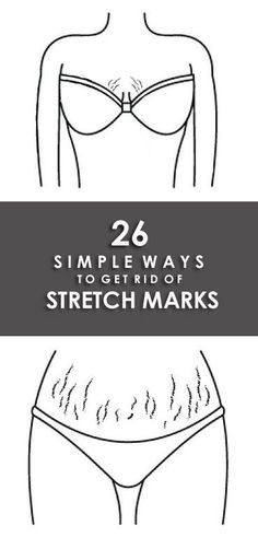 How to Remove Stretch Marks?Most of the people find it difficult to remove stretch marks. Here are the list of the top 26 remedies on how to remove stretch marks naturally and fast. Stretch Mark Remedies, Stretch Mark Removal, Beauty Skin, Health And Beauty, Tips Belleza, Skin Treatments, Acne Treatment, Natural Skin Care, Natural Beauty Tips