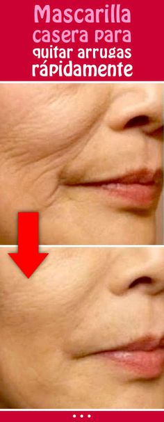Homemade mask to remove wrinkles quickly Beauty Secrets, Beauty Hacks, Spots On Face, Homemade Mask, Varicose Veins, Wrinkle Remover, Tips Belleza, Skin Treatments, Natural Health