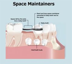 Dentaltown - How do you seperate the teeth for band fitting of space maintainer?