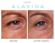 """Thanks to Member Christine Gay-Girrbach for sharing her #LWAlavida testimonial with us! Christine says, """"My skin is brighter, much more unified and has more firmness. And as a huge bonus, it looks like my eyelids were lifted! I just love Alavida and people around me see it. Thank you!""""  Our skincare line reduces the appearance of fine lines and wrinkles, brightens skin, reduces discoloration, and hydrates 24/7."""