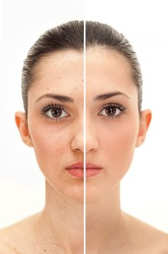 Embarrassing dark spots on your face can be a part of the aging process, or caused by acne or small bite scars.