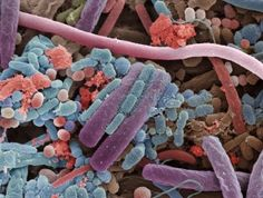 Amazing Scanning Electron Microscope Pictures--bacteria on the surface of a human tongue Scanning Electron Microscope Images, Microscope Pictures, Human Tongue, Microscopic Photography, Micro Photography, Microscopic Images, Human Body Parts, Macro And Micro, Gut Bacteria