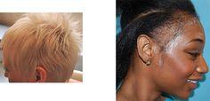 Cortes de pelo para disimular la alopecia femenina
