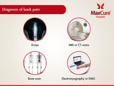 Diagnosis of back pain Visit:https://maxcurehospitals.com/ #MaxCureHospitals #MaxCure #BackPain #Xrays #BoneScan #Electromyography #MRI #CtScan #Consultexperts #Hyderabad
