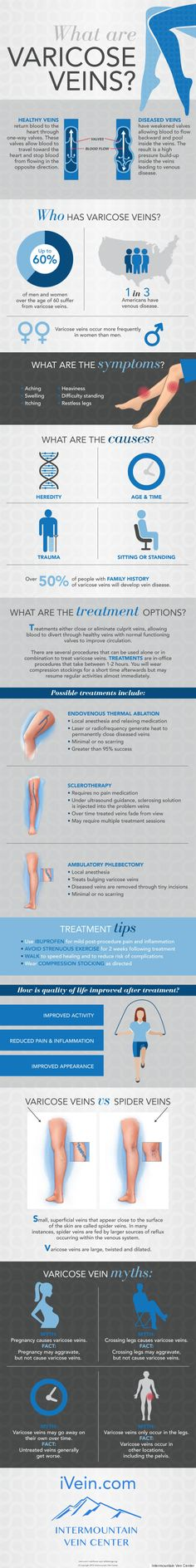 Everything you need to know about varicose veins, from symptoms to treatment.