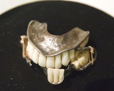 Silver dentures attached by Buccal wire springs, circa 1829. In this full upper and partial lower denture, the front teeth are made of porcelain while the back molars are carved from ivory.