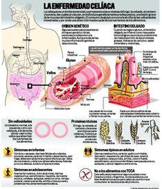 Estrechando el cerco a la enfermedad celíaca