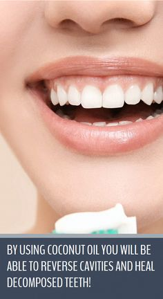 Oral Health, Dental Health, Dental Care, Health Care, Reverse Cavities, Heal Cavities, Natural Toothpaste, Receding Gums, Oral Surgery