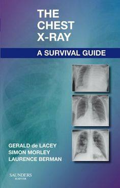 37 best kindle store medical ebooks images on pinterest kindle the chest x ray a survival guide gerald de lacey ebook print copies available at lee wee nam library medical library fandeluxe Images