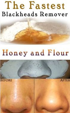 Acne Remedies Learn 8 Homemade Treatments that will make you get Rid of Blackheads Naturally. - Learn 8 Homemade Treatments that will make you get Rid of Blackheads Naturally. Beauty Tips For Glowing Skin, Clear Skin Tips, Beauty Skin, Face Beauty, Face Skin Care, Diy Skin Care, Covering Acne, Get Rid Of Blackheads, Removal Of Blackheads