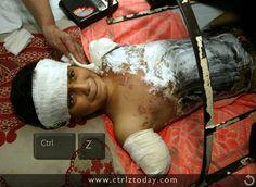 Ctrl-Z Innocents injured during war