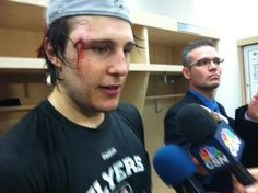 Schenner's close call needed two layers of stitches. Badass. (4/6/13)