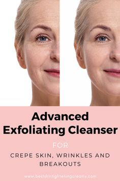 Do you have sensitive skin and need an exfoliating facial scrub that won't damage your skin? Using a cleanser with glycolic acid regularly will shrink your pores, regulate facial oil, fade dark spots, along with the wrinkles on your face, neck, and décolleté or wherever else you want to use it. Our professional-grade advanced exfoliating cleanser with green tea, orange peel, tea tree oil, and jojoba beads will boost collagen production as your skin becomes smoother, firmer, and more glowing! Skin Tightening Lotion, Crepe Skin, Skin Resurfacing, Shrink Pores, Even Out Skin Tone, Exfoliate Face, Wrinkled Skin, Facial Oil, Skin Brightening