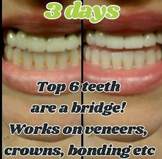 What are you waiting for? Click to order this amazing toothpaste today! Ap 24 Toothpaste, Whitening Fluoride Toothpaste, Teeth Whitening, Wine Stains, Nu Skin, White Teeth, Direct Sales, Cavities, Skin Treatments