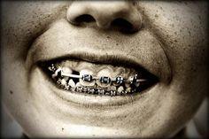 smile in braces