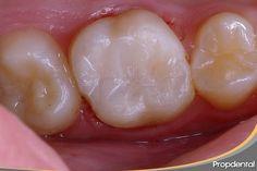 Caso clínico del tratamiento de #endodoncia