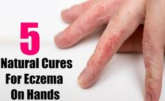 5 Easy And Simple Ways To Cure Eczema On Hands Naturally