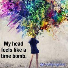 My head feels like... Chronic Migraine