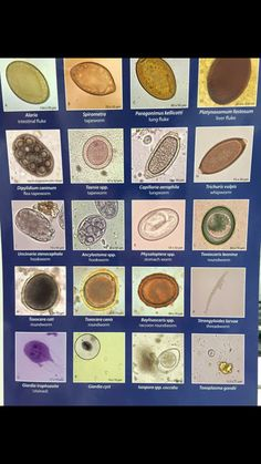 The Ova and Cyst of different parasites Medical Lab Technician, Vet Tech Student, Medical Laboratory Scientist, Med Lab, Veterinary Medicine, Medical Technology, Medical Laboratory Science, Medical Laboratory, Tri Fold Brochure