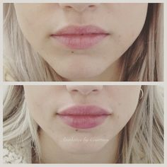 Lips with 1 ml ha. Can this be achieved with half a syringe? Botox Fillers, Lip Fillers, Lip Injections, Lip Plumper, Aesthetic Dermatology, Lip Augmentation, Lip Shapes, Facial, Hair