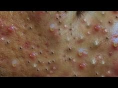 Satifying videos for Relaxation 2021 #338 - YouTube Pimples, Relax, Videos, Youtube, Youtubers, Youtube Movies