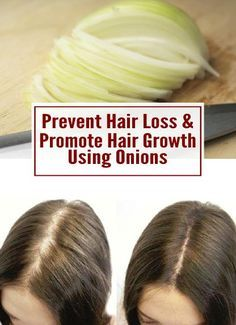 Tips for preventing hair loss & promoting hair growth using onions… – The winning formula is a step-by-step treatment, all-natural, with zero side effects… Stop Hair Loss, Prevent Hair Loss, Curly Hair Styles, Natural Hair Styles, Reverse Hair Loss, Male Pattern Baldness, Regrow Hair, Hair Loss Women, Female Hair Loss