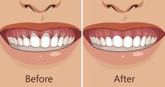 Top Oral Health Advice To Keep Your Teeth Healthy. The smile on your face is what people first notice about you, so caring for your teeth is very important. Unluckily, picking the best dental care tips migh Gum Health, Teeth Health, Oral Health, Dental Health, Dental Care, Public Health, Grow Back Receding Gums, Gum Recession Treatment, Health Products
