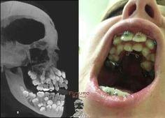 Dental Humor, Dental Hygiene, Dental Assistant Study, Emergency Medicine, Teeth Cleaning, Orthodontics, Oral Health, Cavities, Weird Facts
