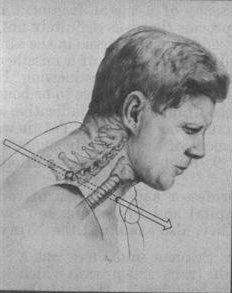 *AUTOPSY OF JOHN F. KENNEDY ~ It is believed that this other bullet, which was fired first, went through the upper part of the back of the President's neck, between his shoulder blades, + not through his throat where the tracheotomy was performed.