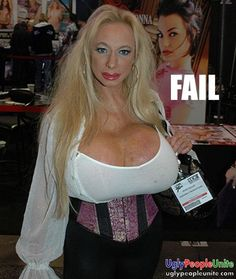 Boob job gone wrong