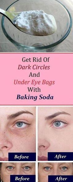 Remove Dark Circles And Under Eye Bags With Baking Soda #darkcirclesremover