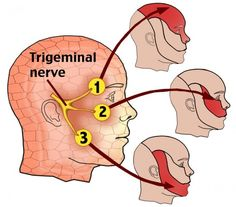 What Is Acupressure What Is Trigeminal Neuralgia? The trigeminal nerve carries signals between the brain and the face. Trigeminal neuralgia (TN) is a painful condition in which this nerve becomes irritated. The trigem. Trigeminal Neuralgia Treatment, Occipital Neuralgia, Nerf Facial, Nerve Disorders, Neurological Disorder, Sensory Nerves, Facial Nerve, Cranial Nerves, Headache Remedies