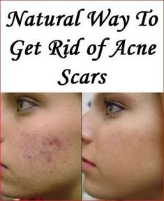 how to get rid of cystic zits fast