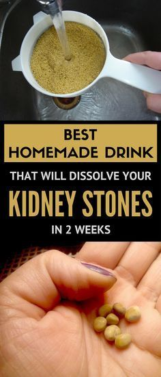 Best homemade drink that will dissolve your kidney stones in 2 weeks.