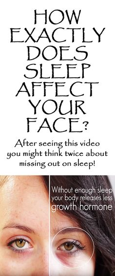 .HOW DOES SLEEP AFFECT YOUR FACE? This is what happens to your face when you don't get enough sleep...   If you thought 'beauty sleep' was just a saying, think again! #sleep #lackofsleep