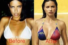 22 Best Breast Implants Before And After images in 2015