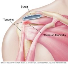 Tendinitis is inflammation or irritation of a tendon — any one of the thick fibrous cords that attaches muscle to bone. The condition causes pain and tenderness just outside a joint. While tendinitis can occur in any of your body's tendons, it's most common around your shoulders, elbows, wrists and heels.