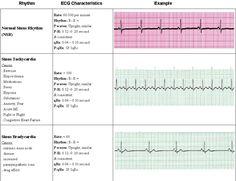 Acls cardiac rhythm strip