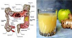 Jugo Natural, Salud Natural, Herbal Remedies, Home Remedies, Natural Remedies, Colon Irritable, Colon Cleanse Detox, Intestine Detox Cleanse, Lemon Juice Cleanse