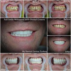 Dental Holiday Turkey - Dentist in Turkey - Dental Implants, Crowns, Veneers Turkey Holidays, Smile Makeover, Dental Bridge, Dental Center, Smile Design, Dental Crowns, Dentist In, Dental Implants, Improve Yourself