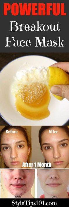 blemish fighting face mask #BakingSodaFace Homemade Scrub, Homemade Skin Care, Diy Skin Care, Homemade Face Masks, Diy Face Mask, Aloe Vera, Diy Beauté, Diy Crafts, Baking Soda Face