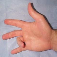 How To Cure Trigger Finger - Best Treatment For Trigger Finger   Natural Home Remedies