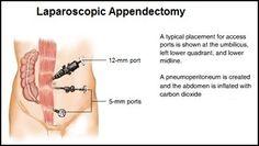 Port (Trocar) placement for conventional laparoscopic appendectomy.    Sometimes I will place the middle port in a different spot depending on the position of the appendix intraoperatively.