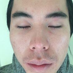 [skin concern] I'm losing hope nothing is working depressed.