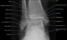 Normal ankle x-ray labeled |