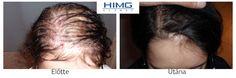 hajbeültetés nőknek - eredmény http://himgeurope.com/