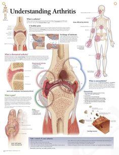Remedies For Knee Joint Pain Understanding Arthritis anatomy poster details joints affected by painful Osteoarthritis (OA), Rheumatoid Arthritis (RA) and Gout. What Is Rheumatoid Arthritis, Yoga For Arthritis, Juvenile Arthritis, Natural Remedies For Arthritis, Knee Arthritis, Rheumatoid Arthritis Symptoms, Arthritis Exercises, Rheumatoid Arthritis