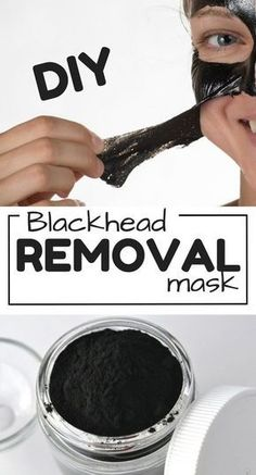 DIY Blackhead removal mask with elmers glue and activated charcoal